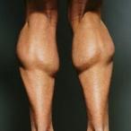 Мышцы голени человека.