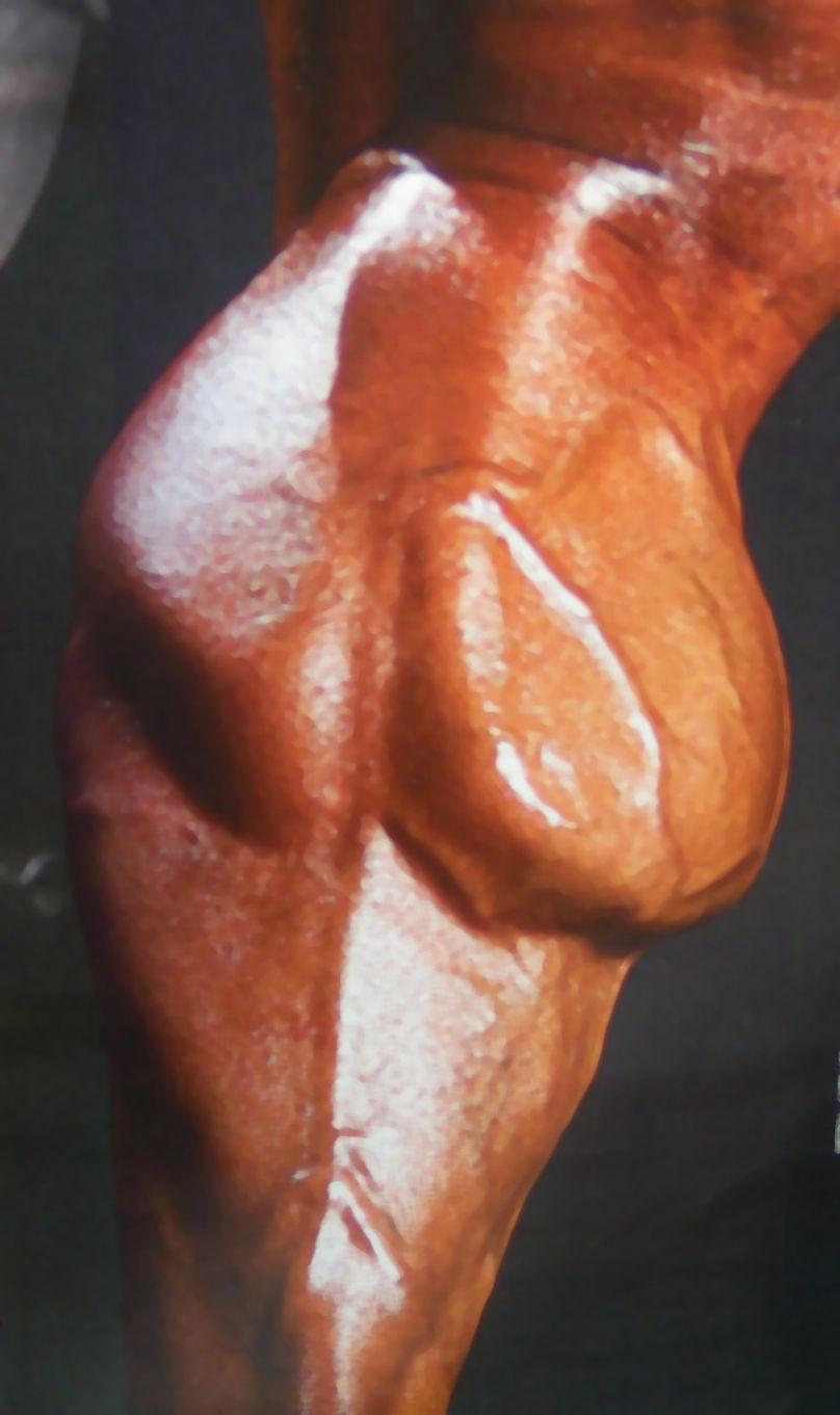 Мышца икроножная