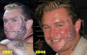 Ли Прист, татуировки переменной яркости на лице